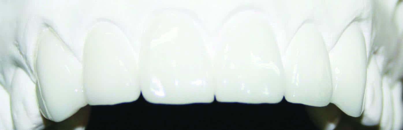 Diagnostic Waxup Anterior