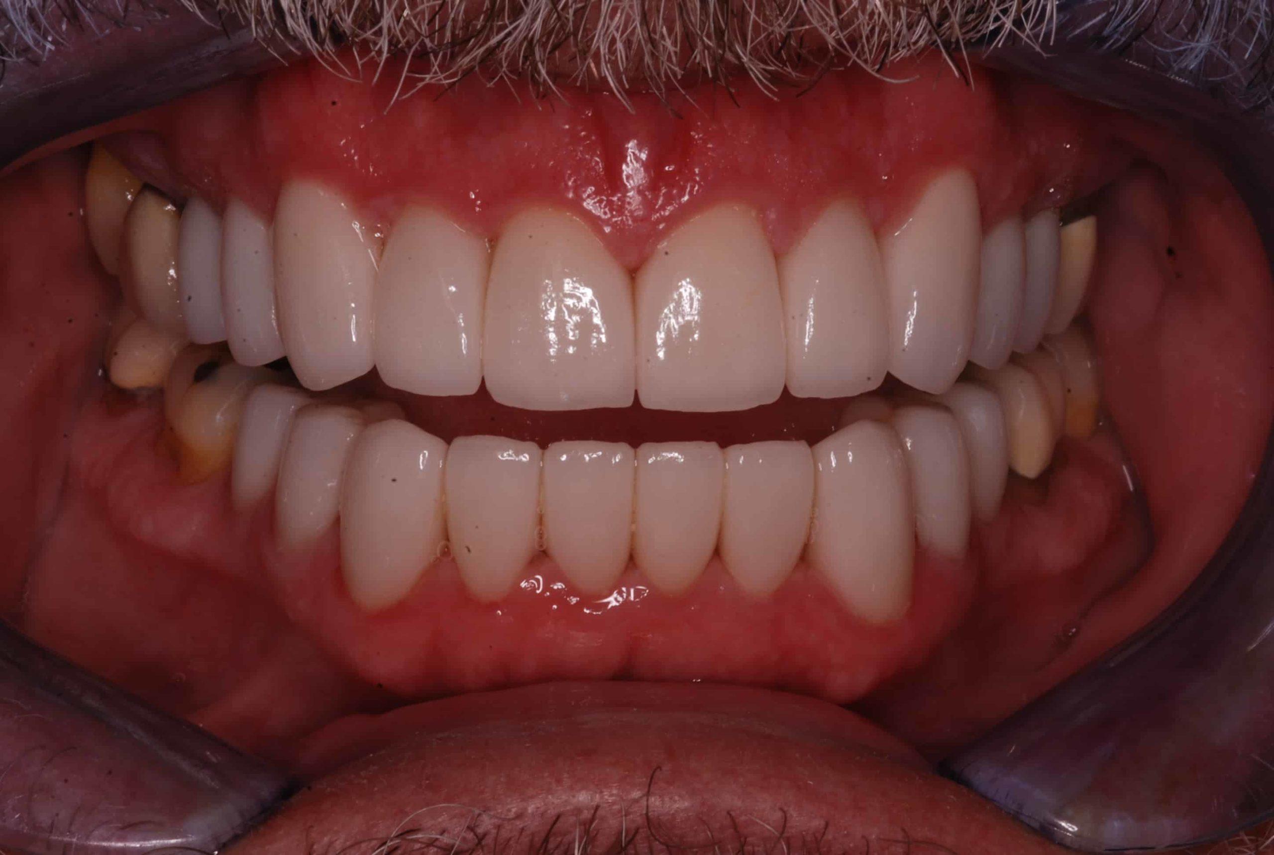 Cosmetic Dental Veneers after1