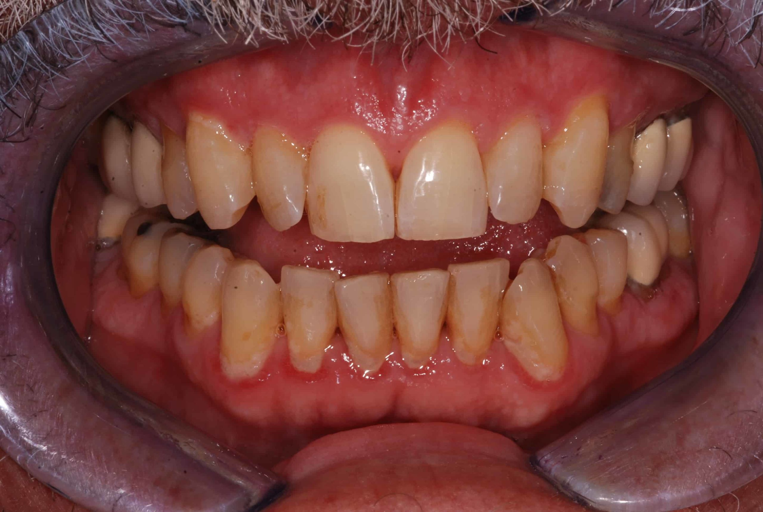 Cosmetic Dental Veneers before 1