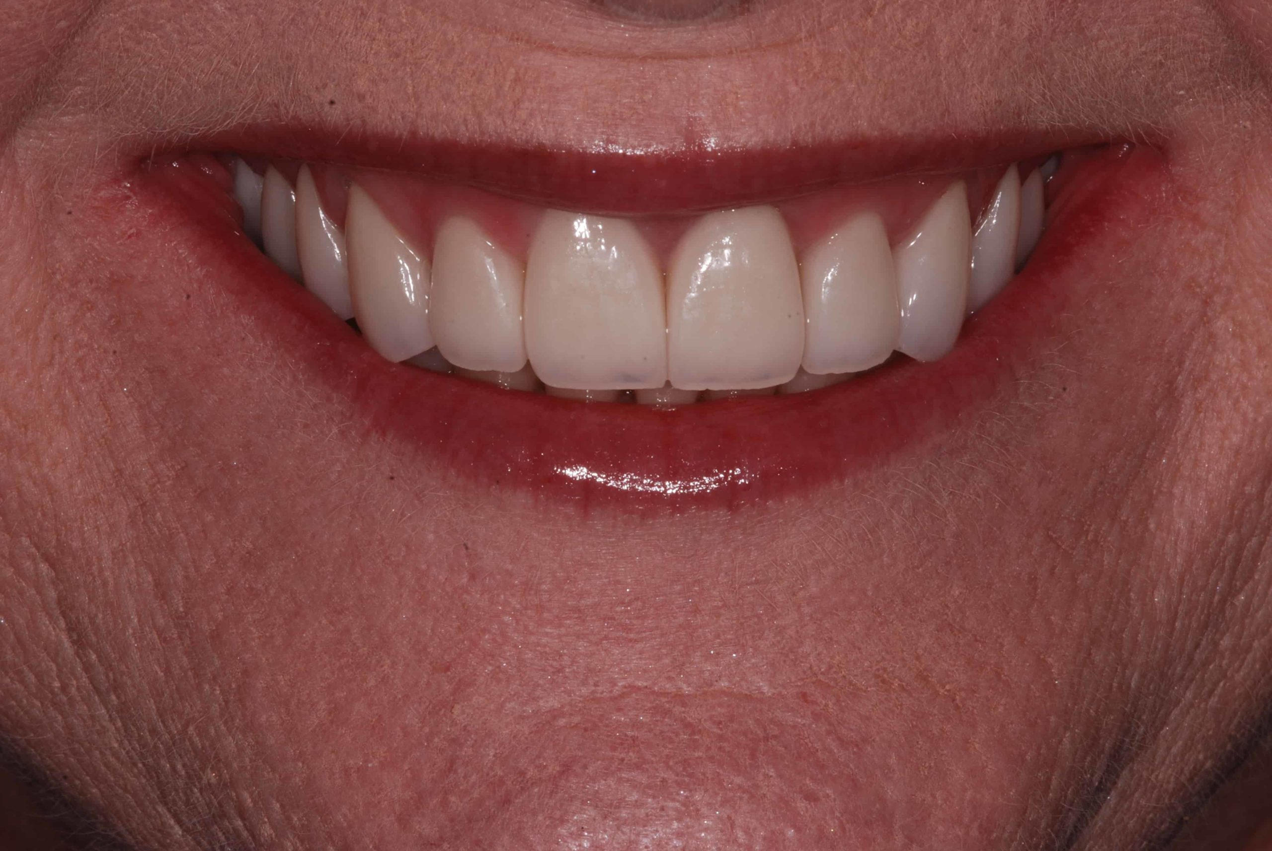 Cosmetic dental Veneers after 2