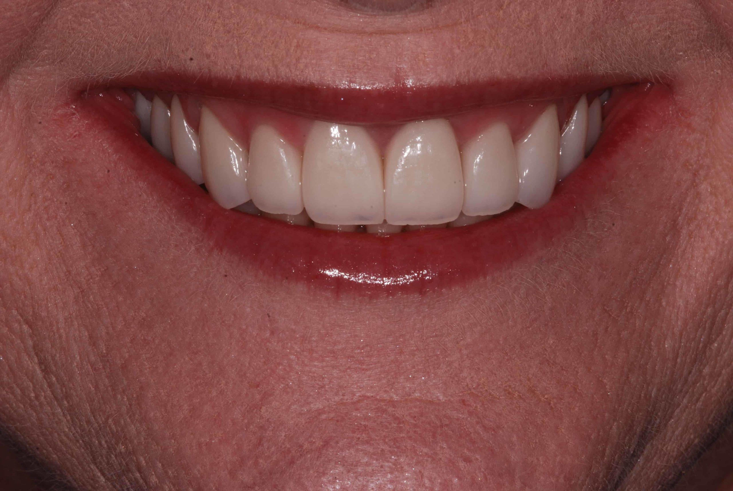 Cosmetic dental Veneers after 2