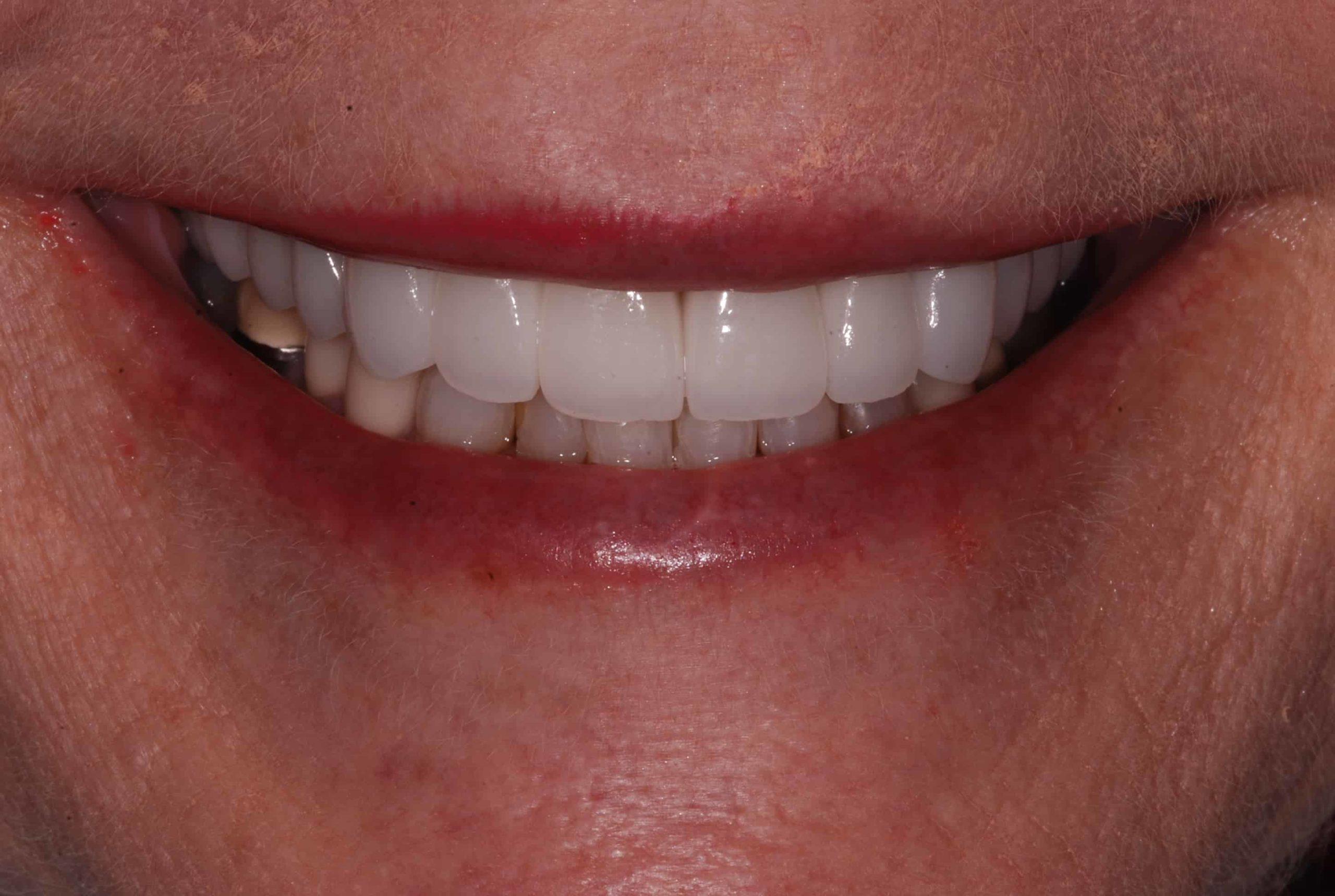 Cosmetic dental Veneers after 3