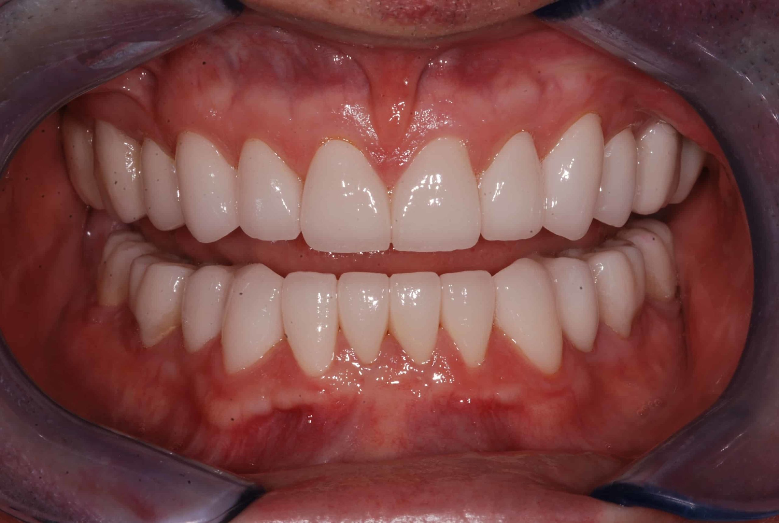 Cosmetic dental Veneers after 52