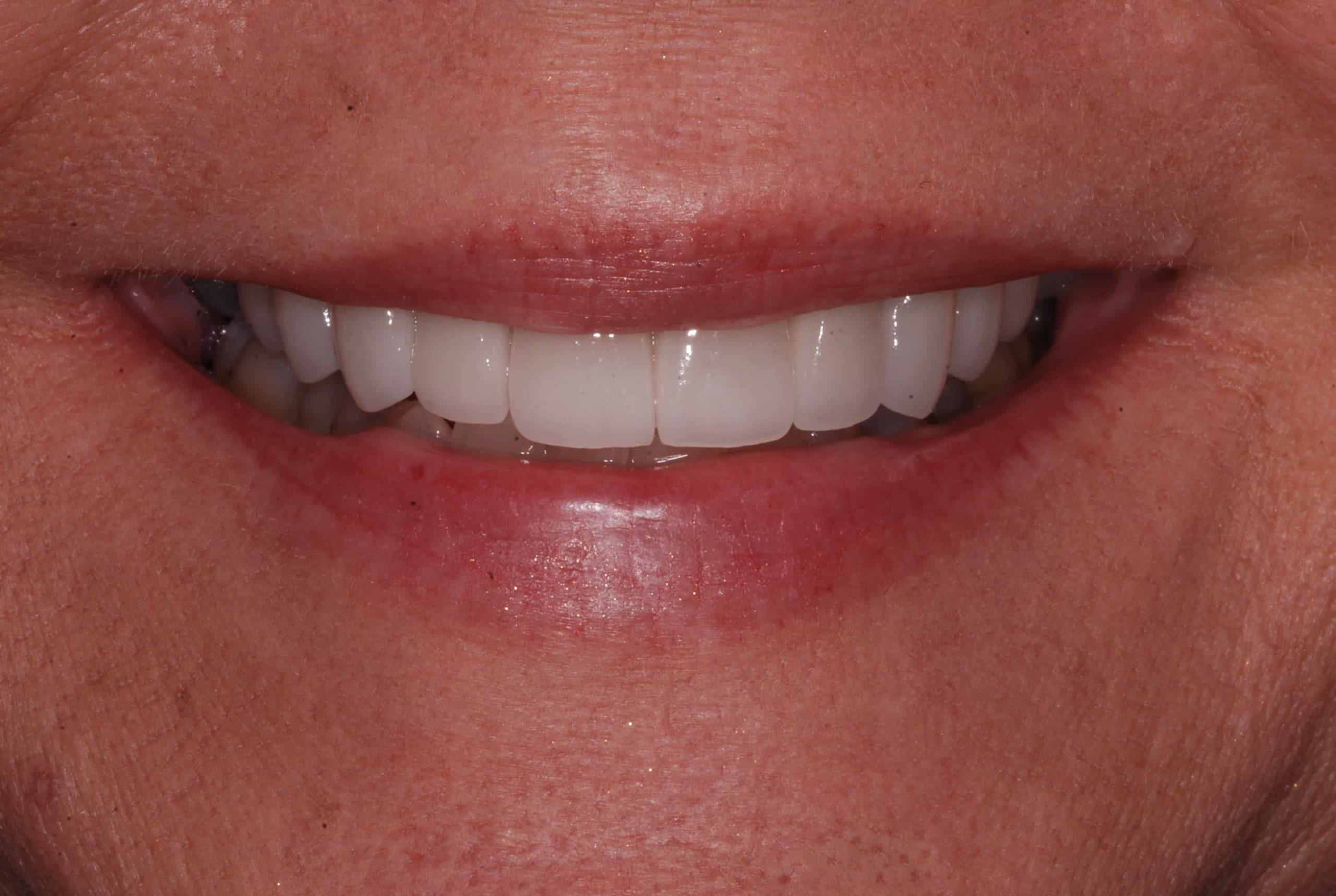 Cosmetic dental Veneers after 61