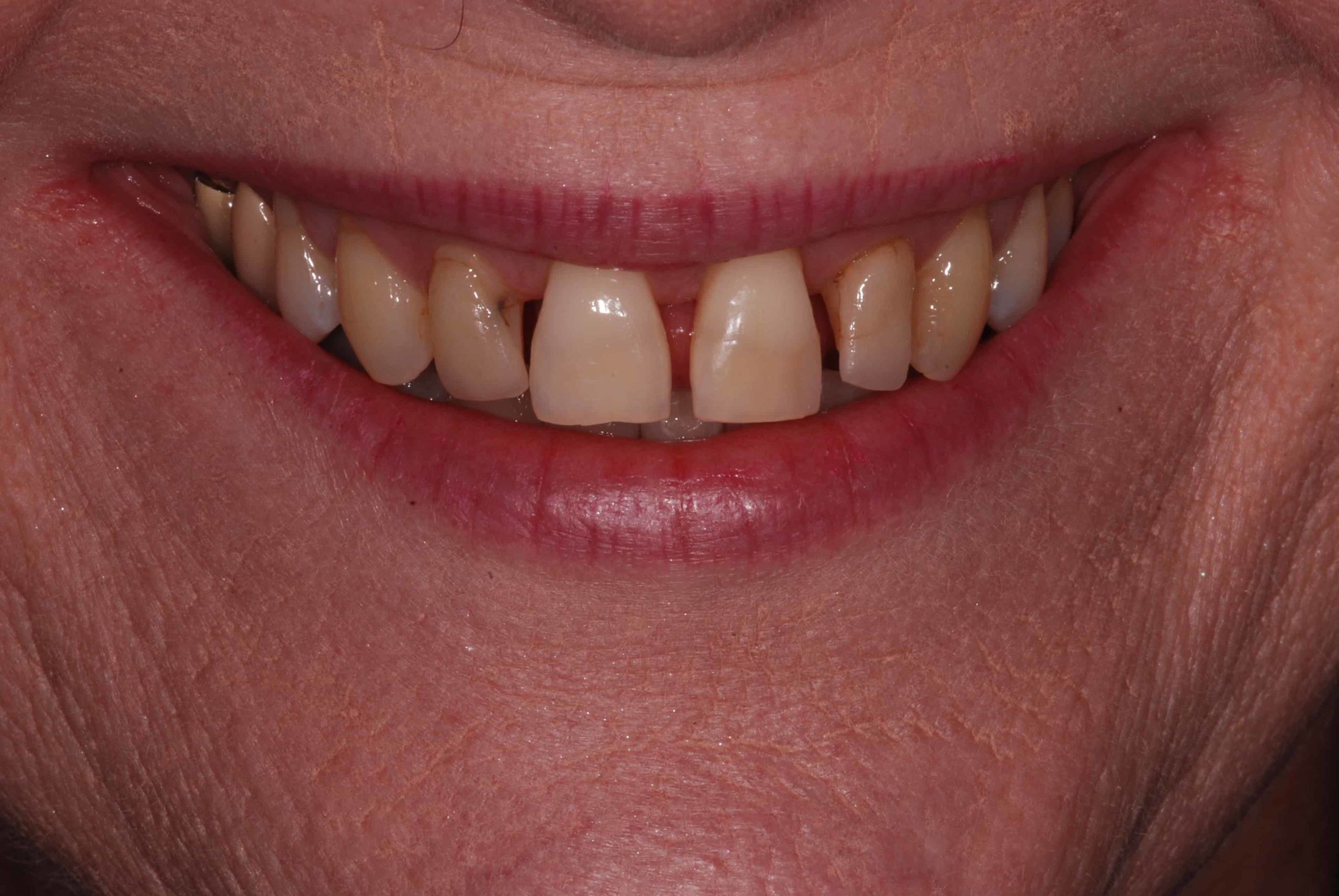 Cosmetic dental Veneers before 2