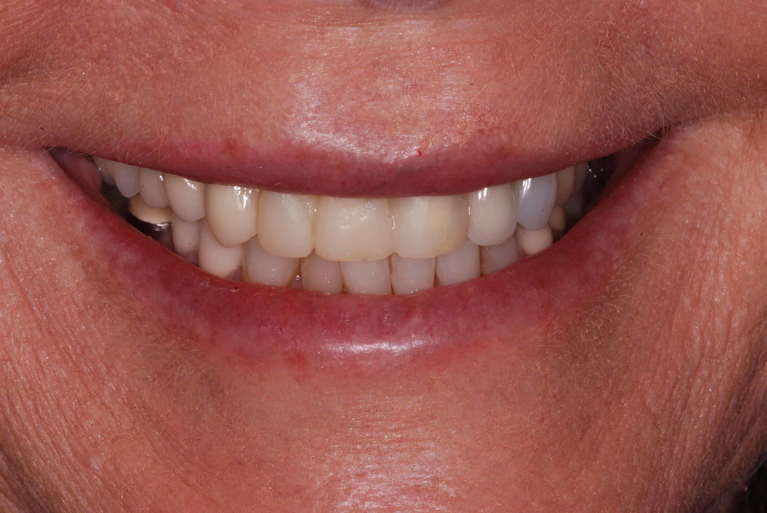 Cosmetic dental Veneers before 3