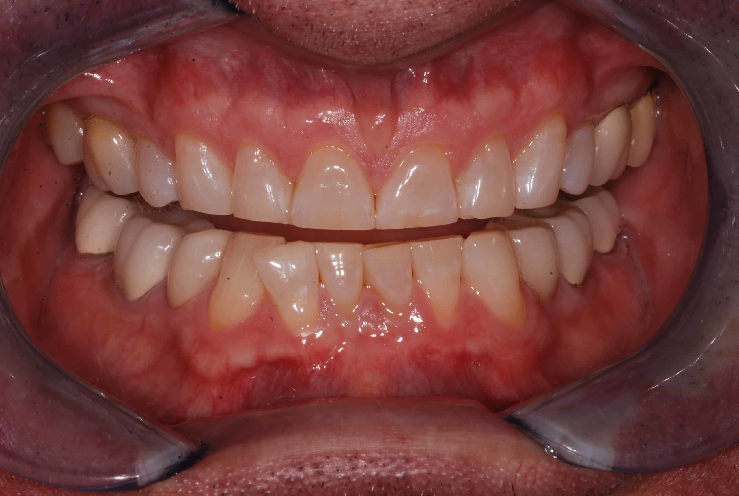 Cosmetic dental Veneers before 52