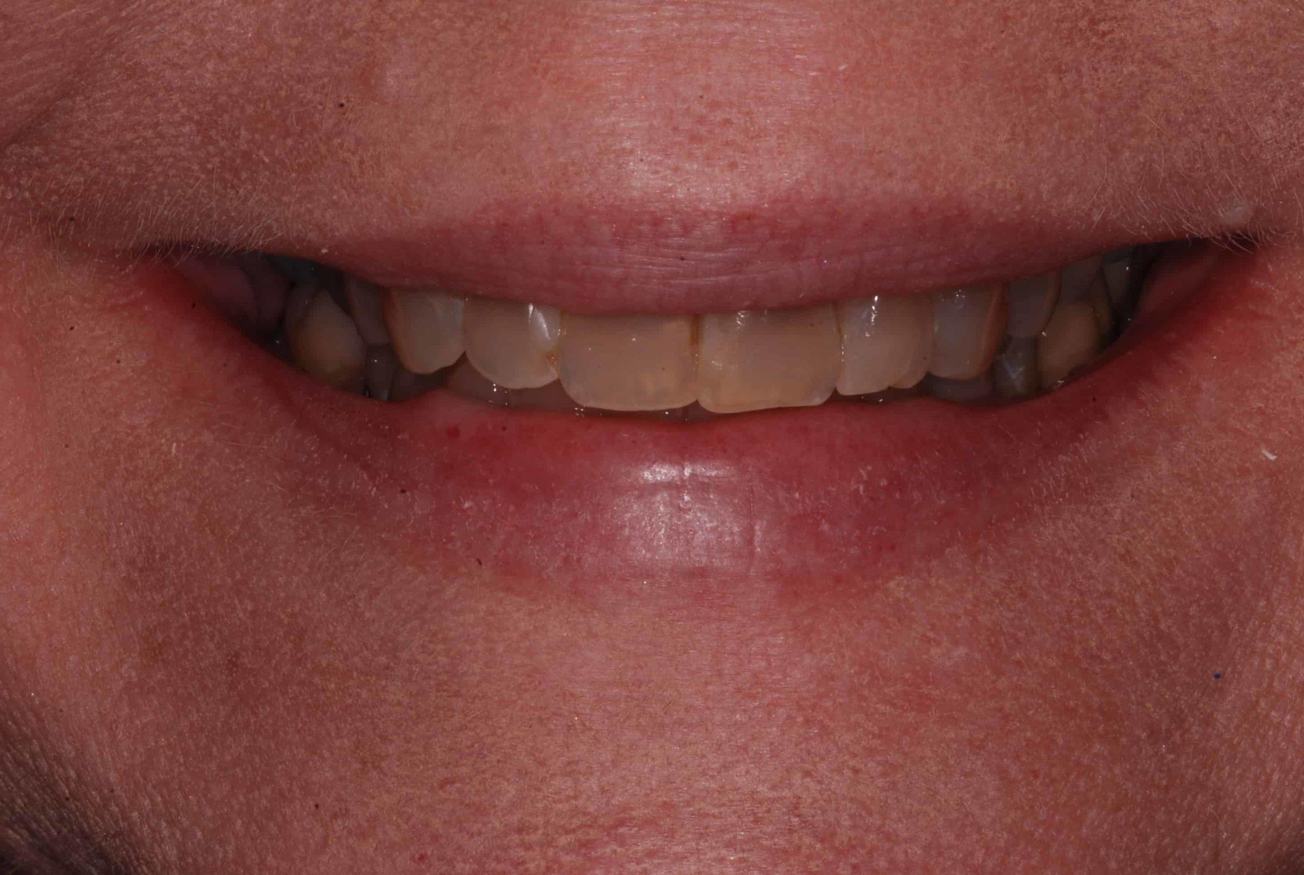 Cosmetic dental Veneers before 61