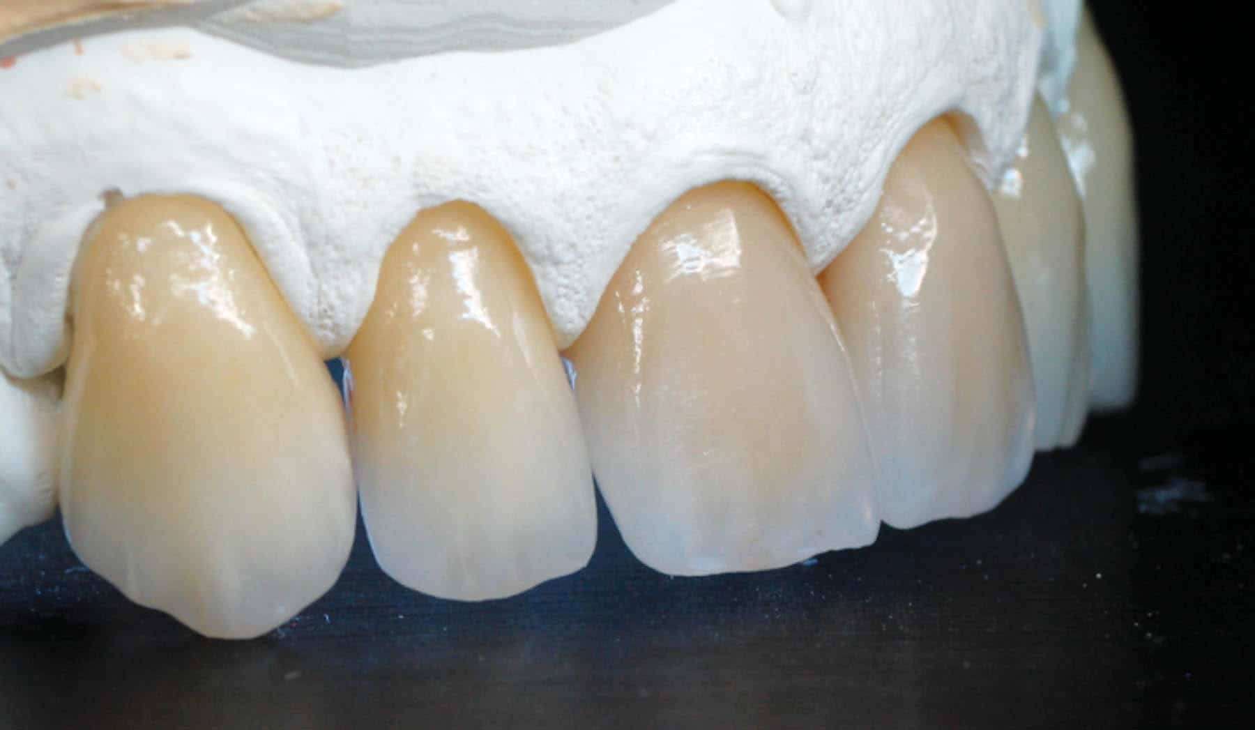 cosmetic porcelain veneers 1